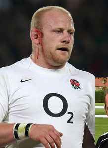 Dan Cole with blood from ear