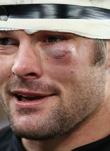 Richie McCAw shiner close up