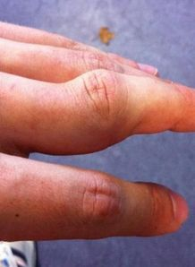 Sam Warburton with dislocated finger