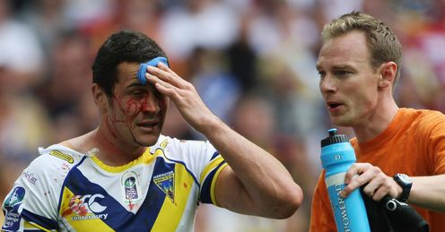 All head injuries must be properly assessed, says Phil