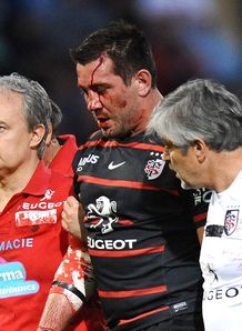 Toulouse centre Florian Fritz leaves the pitch bleeding