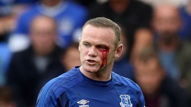Rooney bloodied by 'elbow'