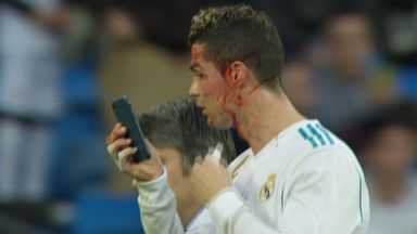 Ronaldo checks out injury with phone!